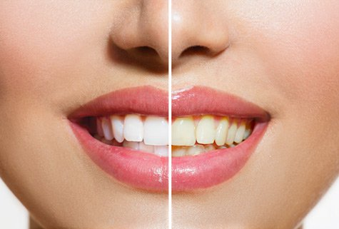 Are whitening toothpastes right for me?