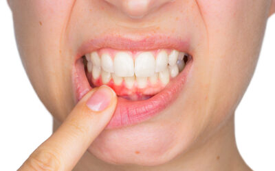 A COVID-19 Link to Oral Health